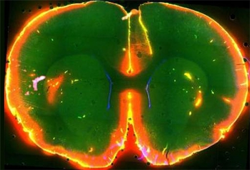 Brain May Flush out Toxins During Sleep, Sleep Clears Brain of Molecules Associated with Neurodegeneration
