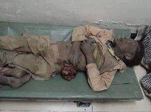 Taiz_massacre3