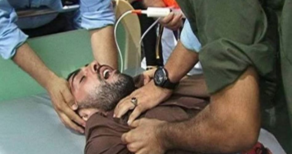 is force feeding unethical Us military calls in 'force-feeding teams' as guantanamo hunger strike  force  feeding is both an unethical and inhumane practic practice.