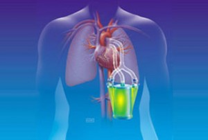 artificial-lung