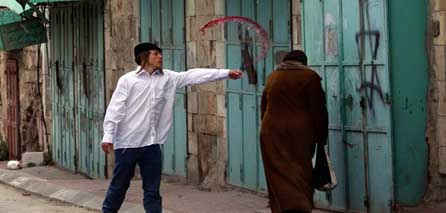 Photo of Settlers attack resident, throw acid at him