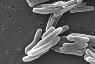 Photo of Iranians find new strains of tuberculosis