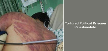Photo of Detainee Hospitalized Due To Torture