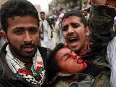 Photo of Yemeni forces injure 18 protesters