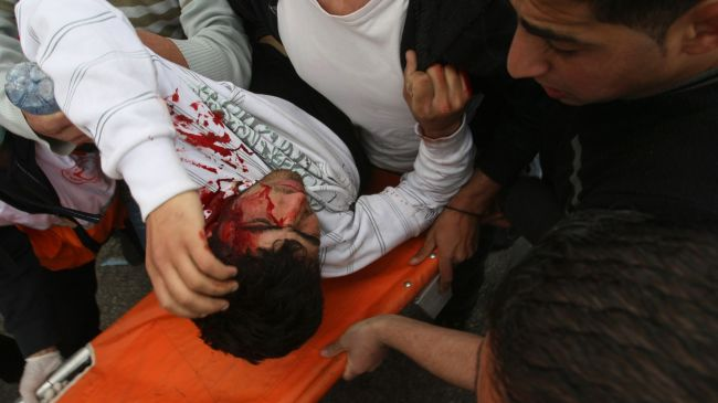 Photo of 150 Palestinians injured in protests in occupied al-quds