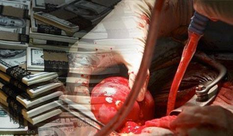 Armed Groups Sponsor Human Organs Trade in Aleppo