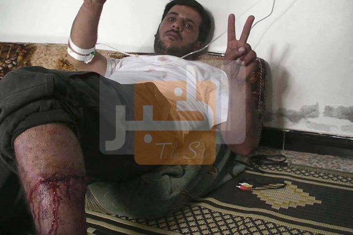 Photo of Syrian Army wounded the savage monster who ate Syrian Soldiers's heart