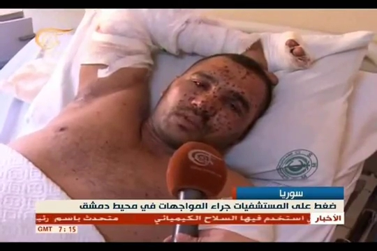 Photo of Video- Syrian Soldiers were affected by the chemical used by Turkey, Israel, US, other allies-backed terrorists