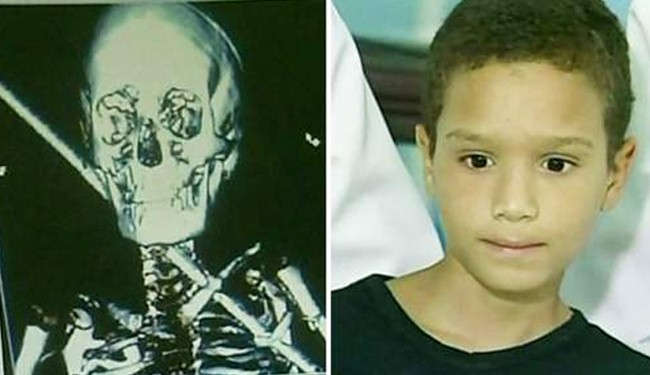 Boy pierced by 2ft iron bar in his neck survives