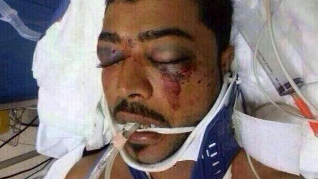 Photo of zionist Puppet Regime crackdown claims another life in Bahrain