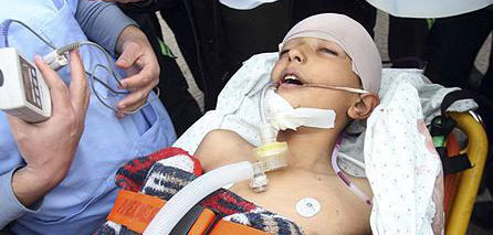Photo of Inhuman occupation forces causes serious spinal injury to Gazan child