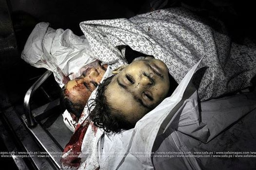 Photo of A child dies every hour in Gaza as a result of Israeli shelling …