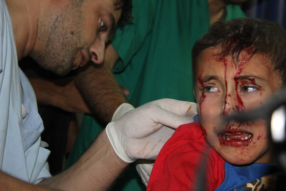 Photo of Photos Show Children are main targets of Israel