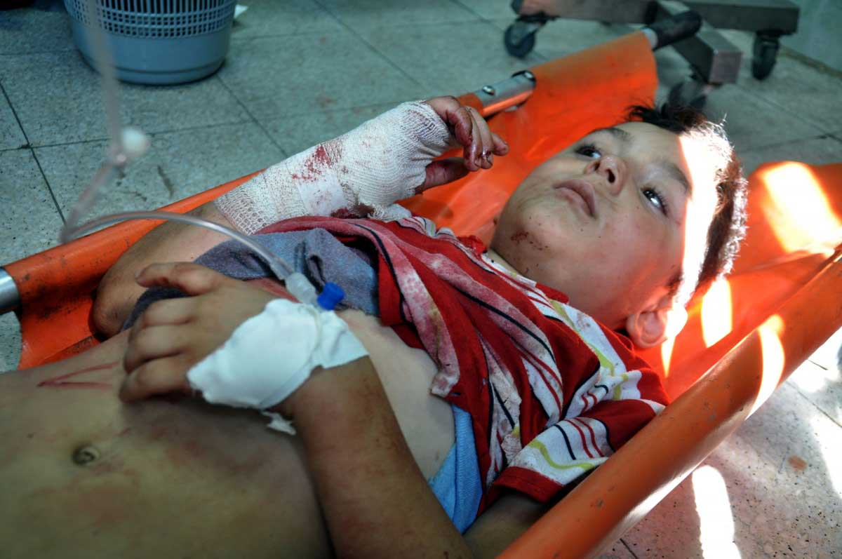 Photo of 35% of the wounded in Gaza suffer disabilities