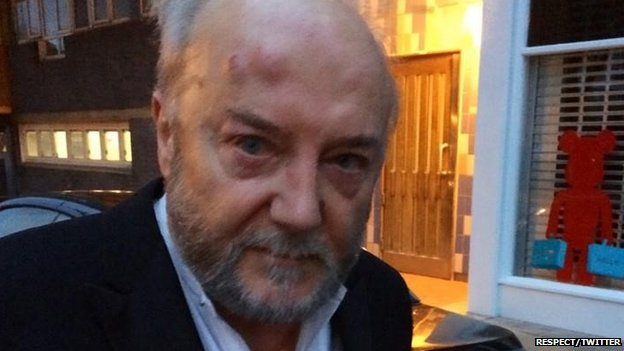 Photo of EXC: Anti-terrorist/israel British MP Galloway attacked by inhuman slaughterer zionist in London!