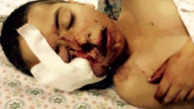 Photo of Rabid dog Israel forces shoot, severely injure 5 years old Palestinian boy
