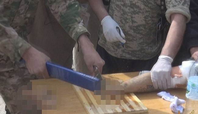 Another Horrific Images, Shows How ISIS Amputate Hand + Pics