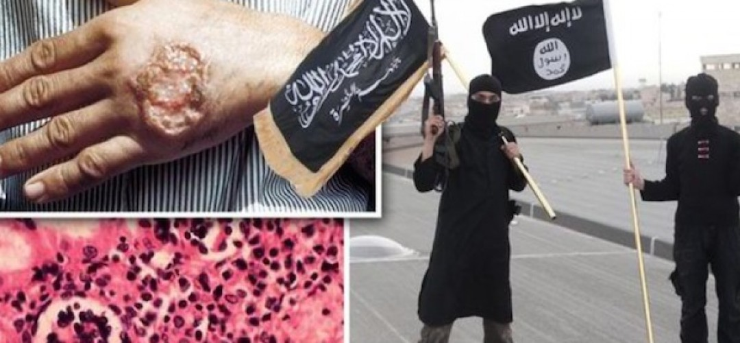 Photo of ISIS Crisis: Mysterious Flesh-Eating Disease Infects Thousadns of Terrorists in Syria