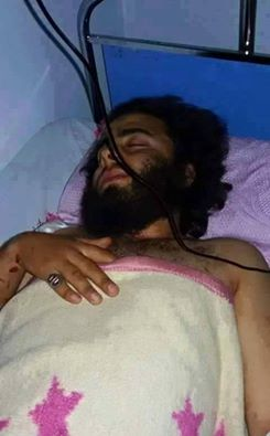 Photo of BREAKING- Saudi Terrorist commander, Abo Al- Kalka, wounded by Syrian Army during attack in Jisr Al-Shougur died in a hospital in Turkey's Gaziantep.