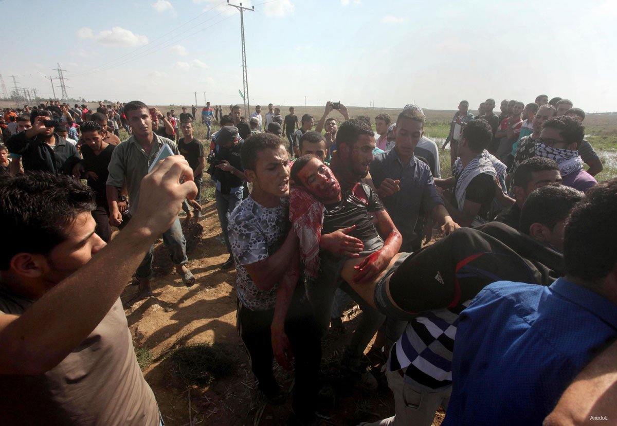 Photo of Palestinian shot by Israeli forces in Gaza demonstration dies of injuries
