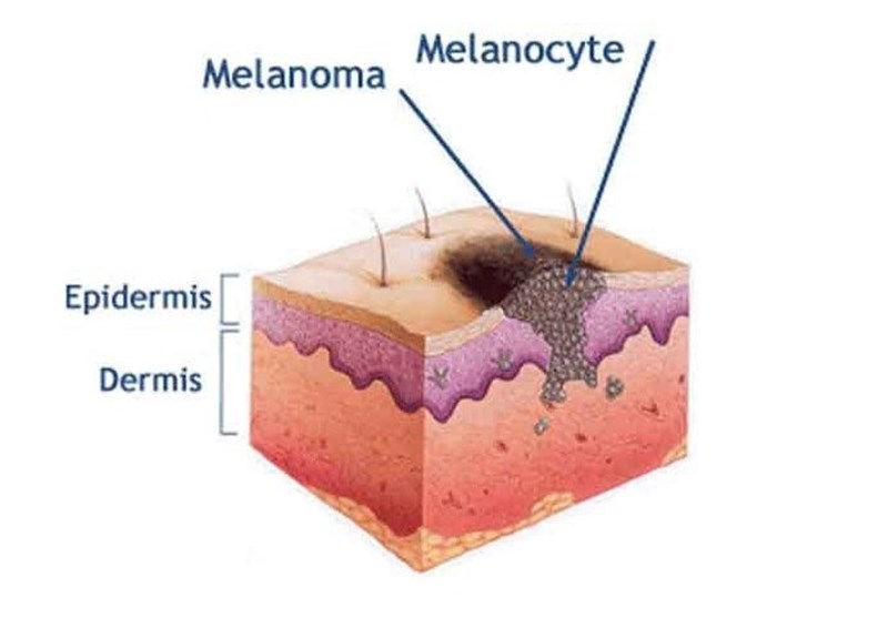 Photo of Skin Cancer: New Drugs with Surprising Powers
