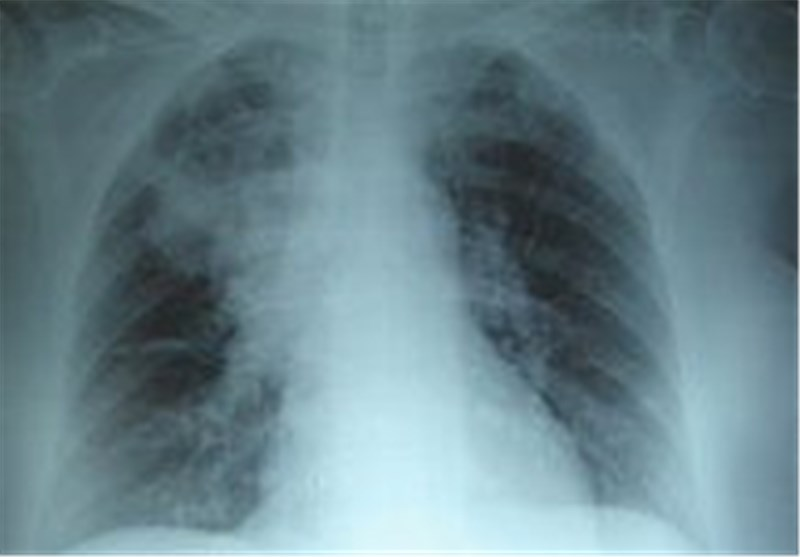 Photo of Faster Detection of Pathogens in Lungs