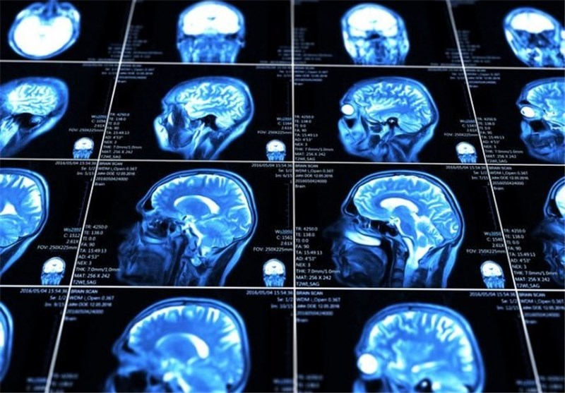 Photo of New Tech Could Deliver Drugs to Brain Injuries
