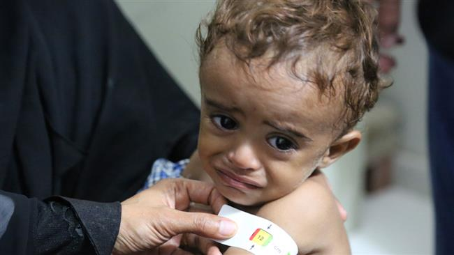 Photo of 'Hunger crippling a generation in Yemen'
