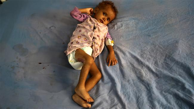 Photo of Yemen: Oxfam slams 'medieval' Saudi-led blockade