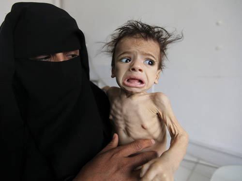 Photo of UN Official Urges Lifting of Yemen Blockade as Required by International Law
