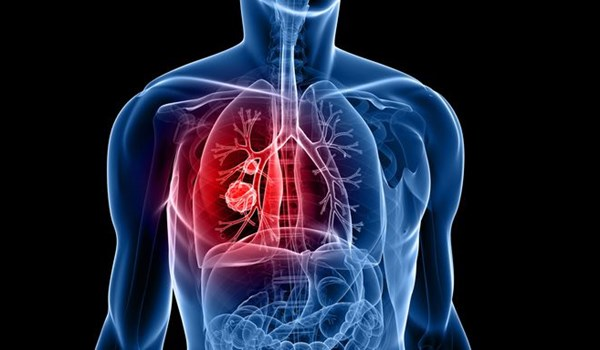 Photo of Iranian Scientists Produce Magnetic Nano-Fibers to Transfer Drugs to Lung Tumors