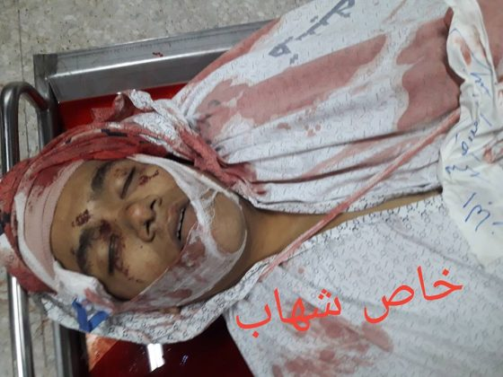 Photo of Rabid Zionist Regime Forces Execute Two Young Palestinians
