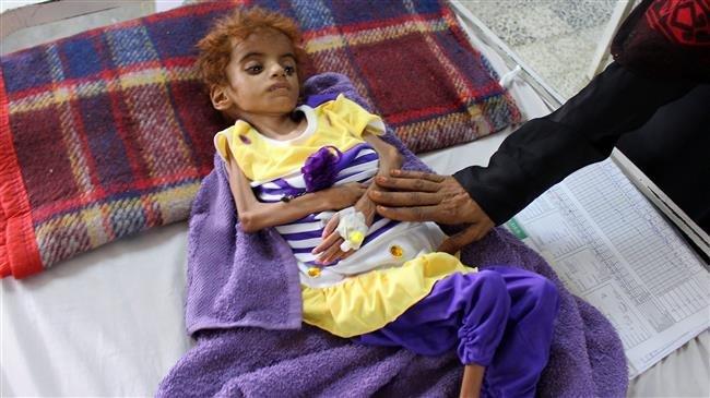 Photo of '12mn Yemenis on brink of worst famine in 100 years'