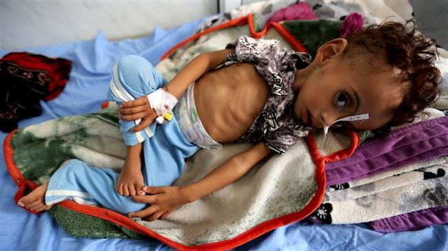 Photo of Almost 85,000 Yemeni kids may have died of malnutrition amid Saudi war: Save the Children