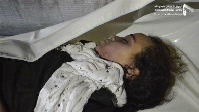 Photo of SAUDI MASSACRE: New zionist Saudi airstrikes kill 13 civilians, including schoolchildren, in Yemen