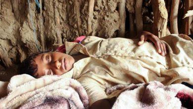 Photo of Outbreak of dengue fever kills dozens of children in conflict-stricken Yemen