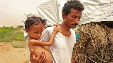 Photo of Child malnutrition hits highest levels in war-ravaged Yemen amid COVID-19: UN